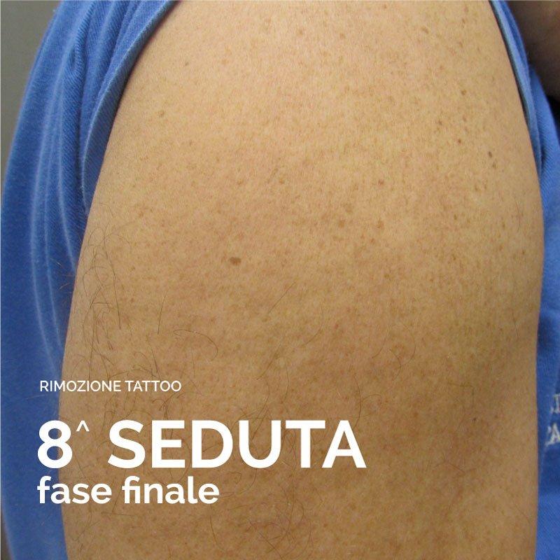 Immagine della della completa rimozione del tatuaggio dopo l'ottava seduta