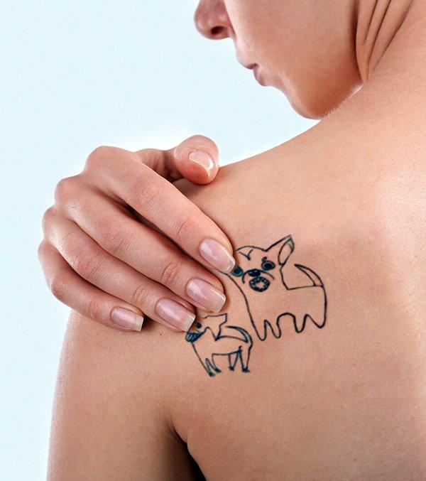 Immagine tatuaggio da rimuovere